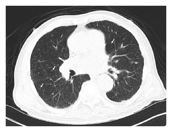 CT scan with diffuse tiny bilateral pulmonary nodules