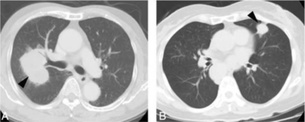 CT showing small cell lung carcinoma