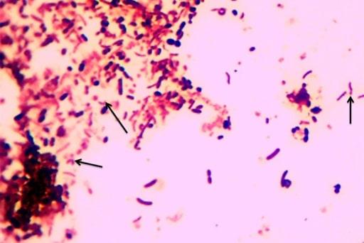 Campylobacter species