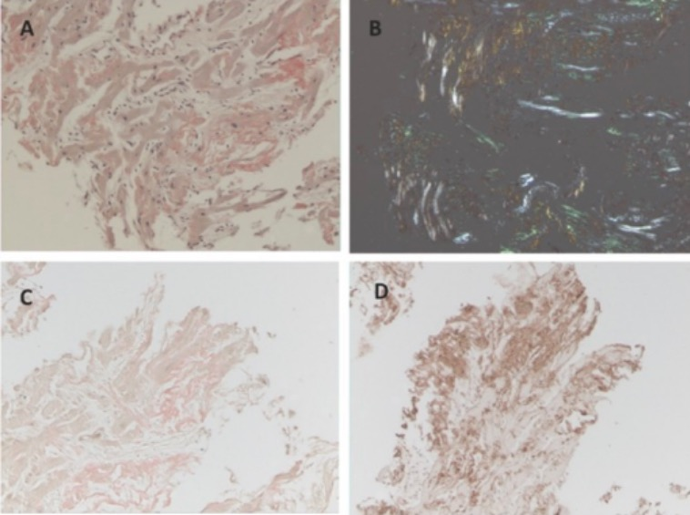 Cardiac 0-amyloidosis