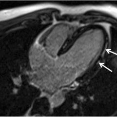 Cardiac MRI demonstrating mid-wall gadolinium enhancement of the lateral wall