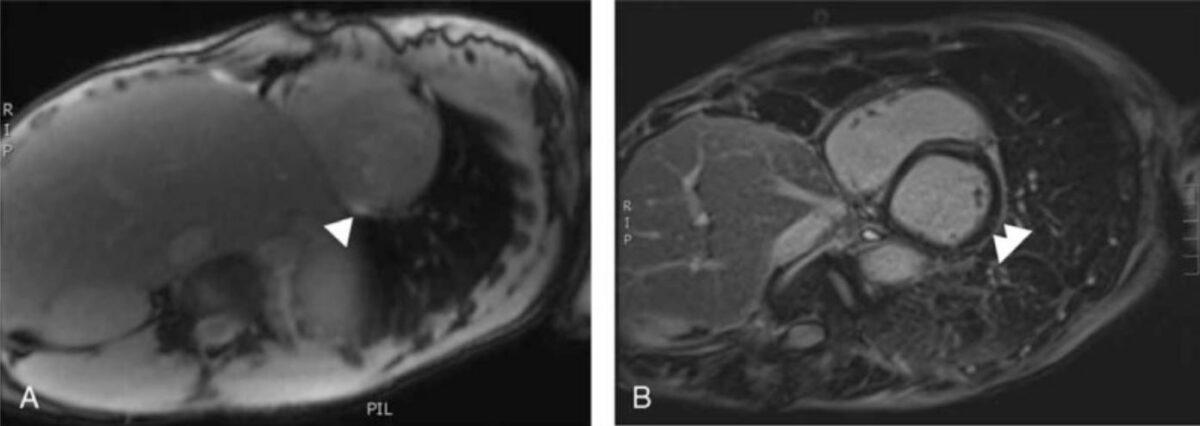 Cardiac MRI suggestive of myocarditis