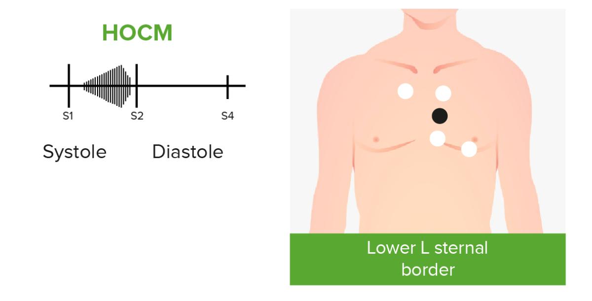 Cardiac murmurs in HOCM