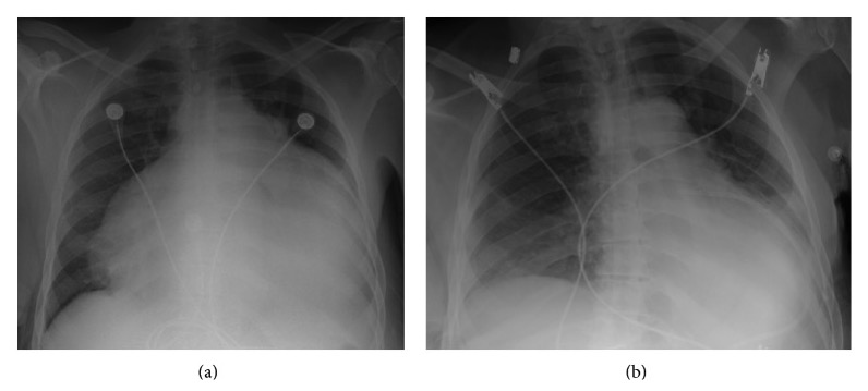 Cardiomegaly due to pericardial effusion before and after drainage
