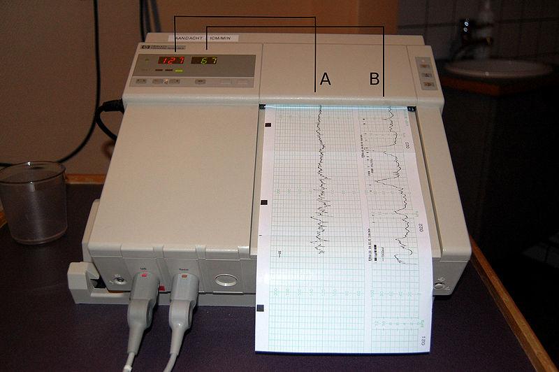 Cardiotocography diagram