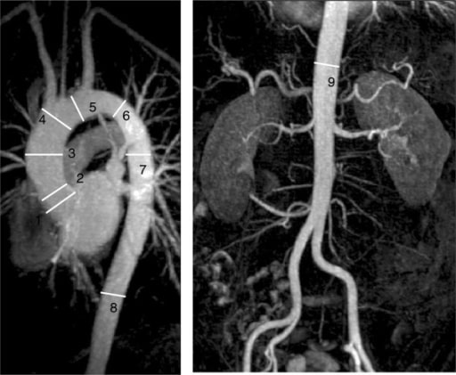 Cardiovascular magnetic resonance in Marfan syndrome