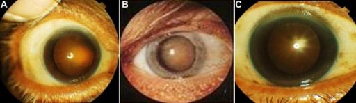 Cataract examples