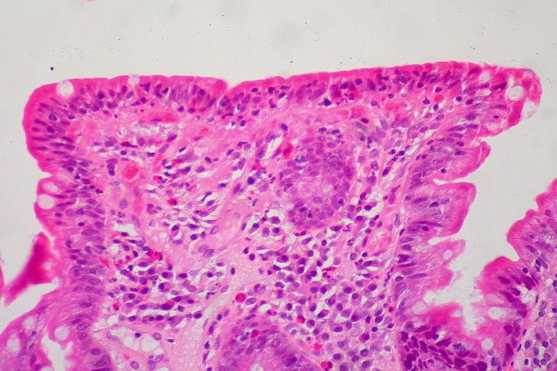 Celiac Sprue, Small Bowel Biopsy