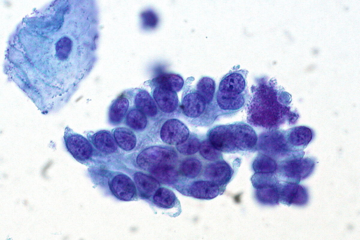 Cervical cytology showing adenocarcinoma in situ of the cervix