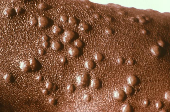 Characteristic papular rash smallpox Orthopoxviridae