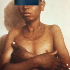 Characteristic skin rash associated with pellagra Malabsorption
