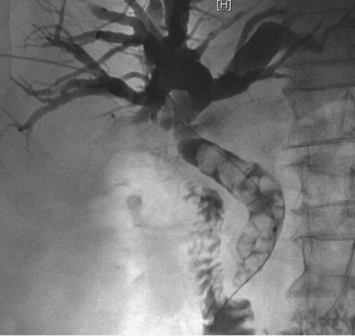 Acute Cholangitis