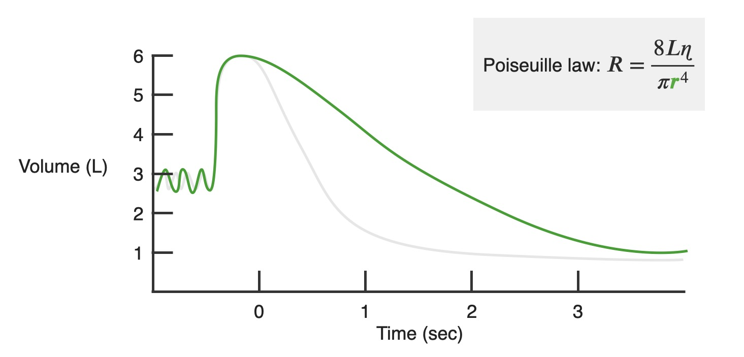Chart showing changes in air volume demonstrated by a person with obstructive lung disease