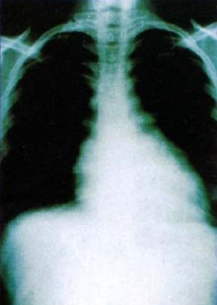 Chest X-ray cardiac enlargement Chagas disease