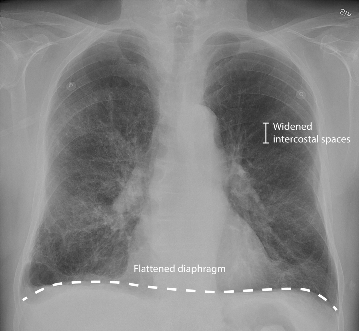 Chest X-ray of Chronic obstructive pulmonary disease (COPD)