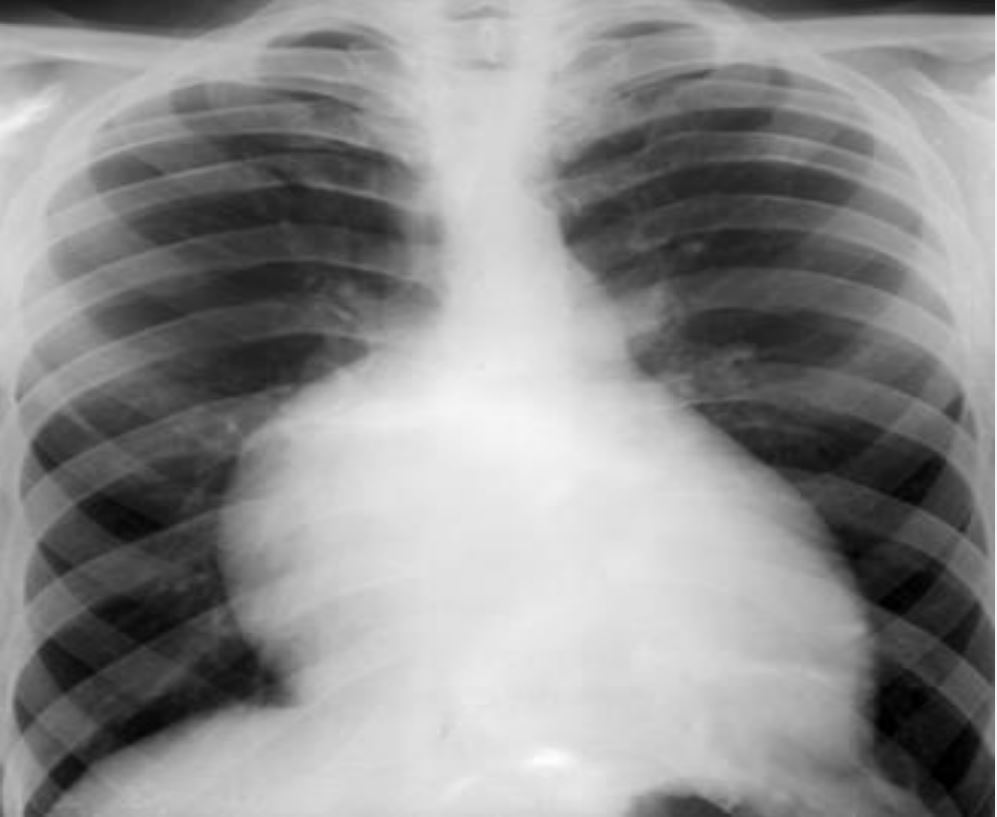 Chest X-ray showing right atrial enlargement