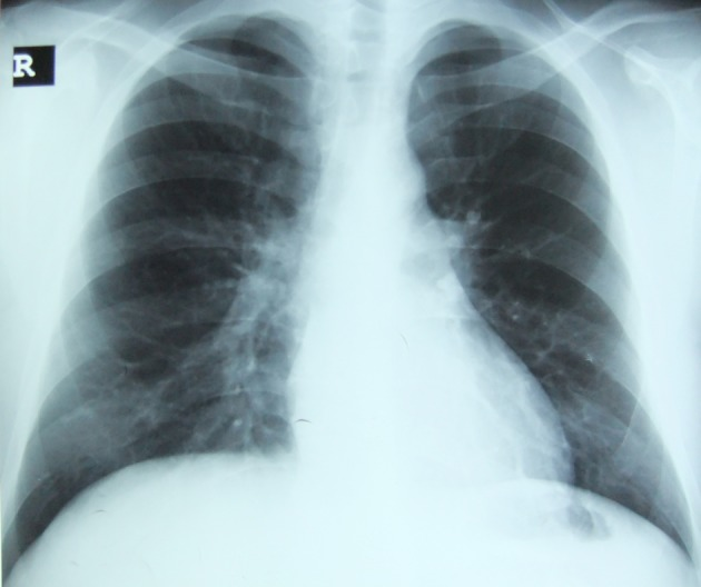 Chest X-ray shows bronchovascular prominance