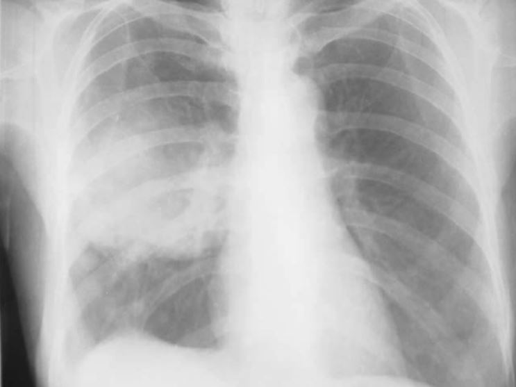 Chest radiograph bronchogenic squamous cell carcinoma