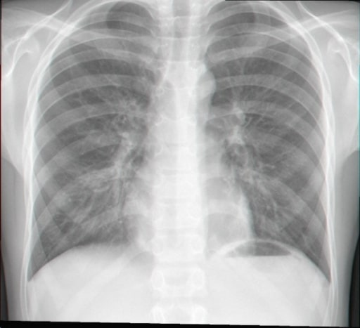 Chest radiograph of an 11 year old patient with Bordetella pertussis infection