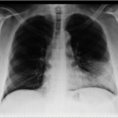 Chest x-ray dense infiltration