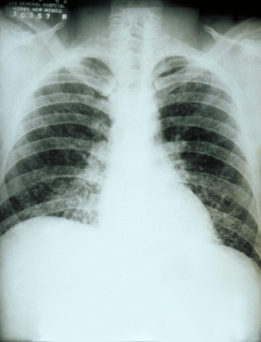 Chest_X-ray_acute_pulmonary_histoplasmosis