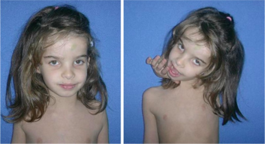 Child with Ehlers-Danlos syndrome