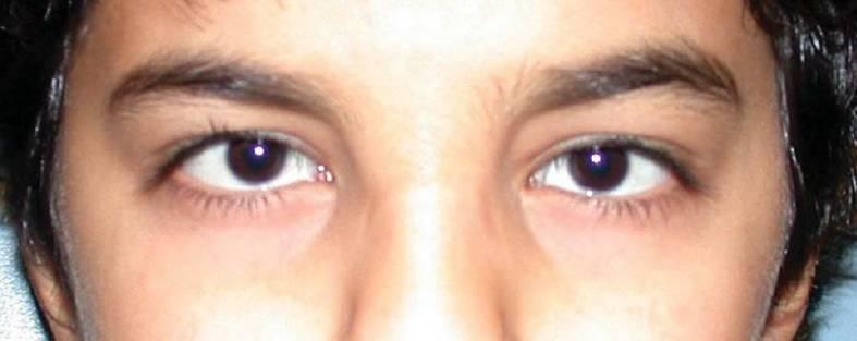 Child with microcornea Anomalies of the cornea