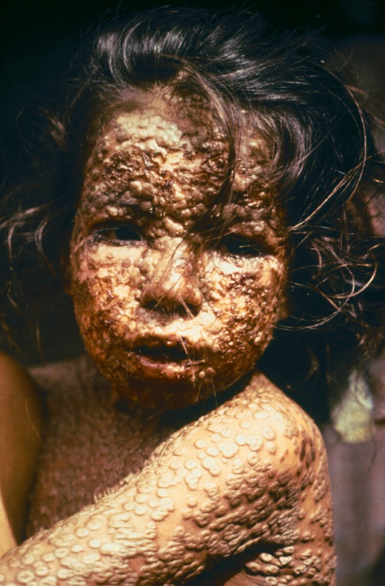 Child_with_Smallpox_Bangladesh orthopoxviridae