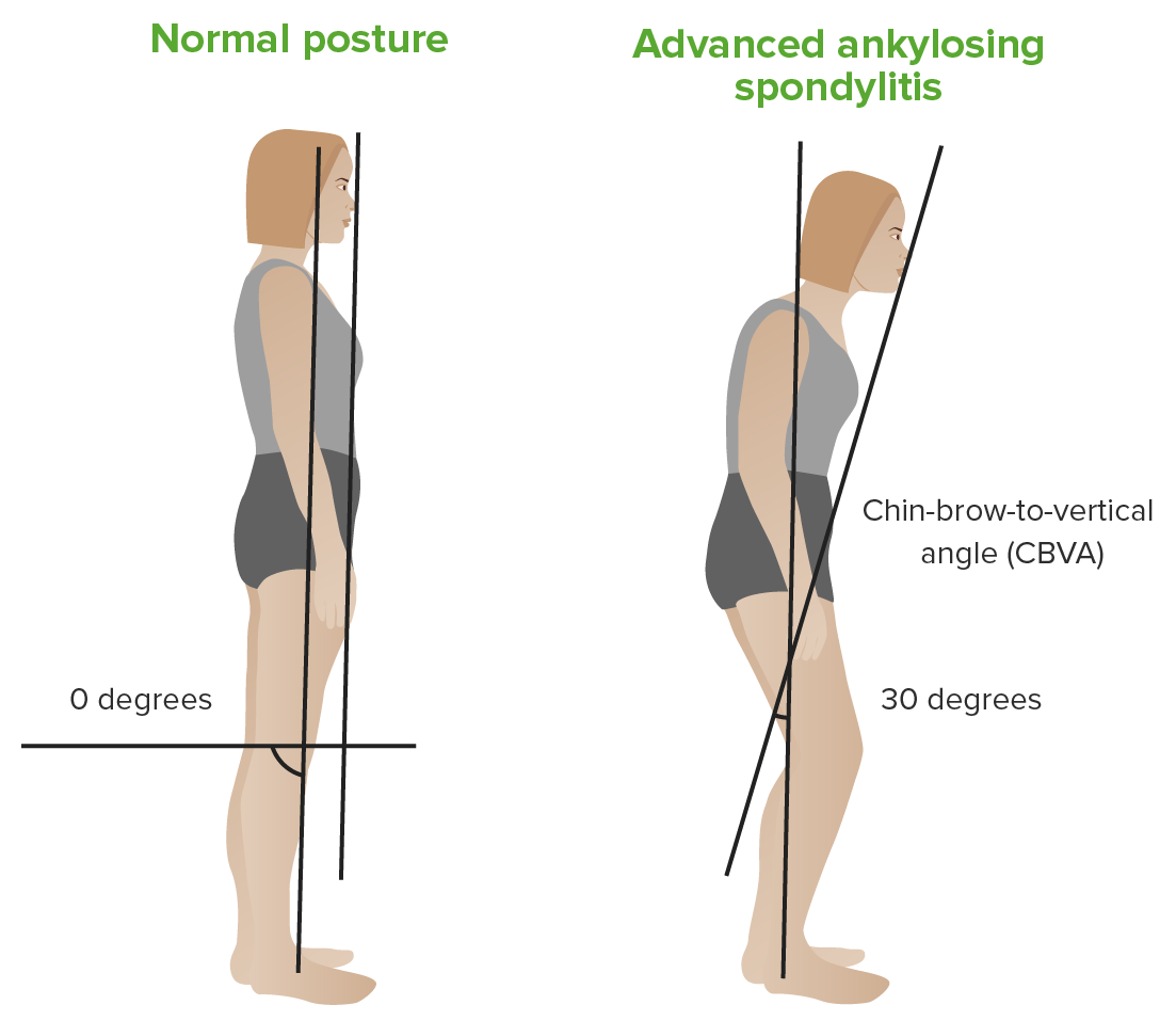 Chin-Brow to vertical angle Ankylosing spondylitis