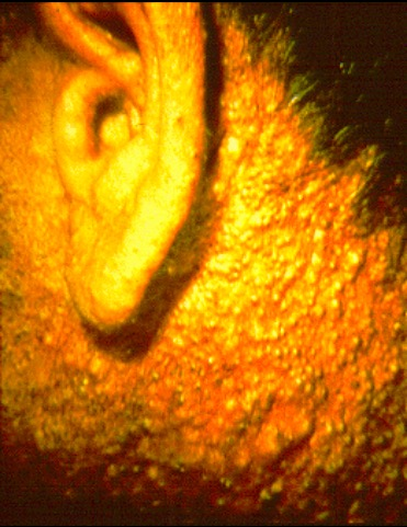 Chloracne in a herbicide production worker