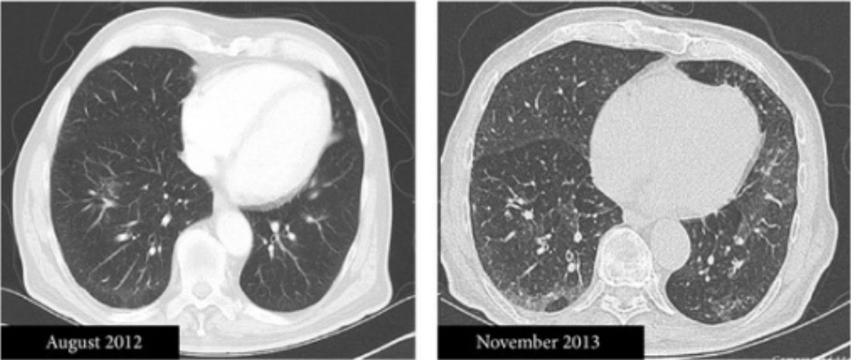 Chlorambucil-induced acute interstitial pneumonitis