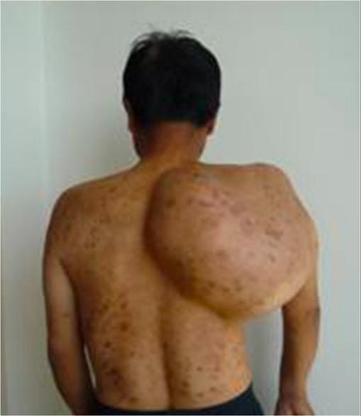 Chondrosarcoma on shoulder