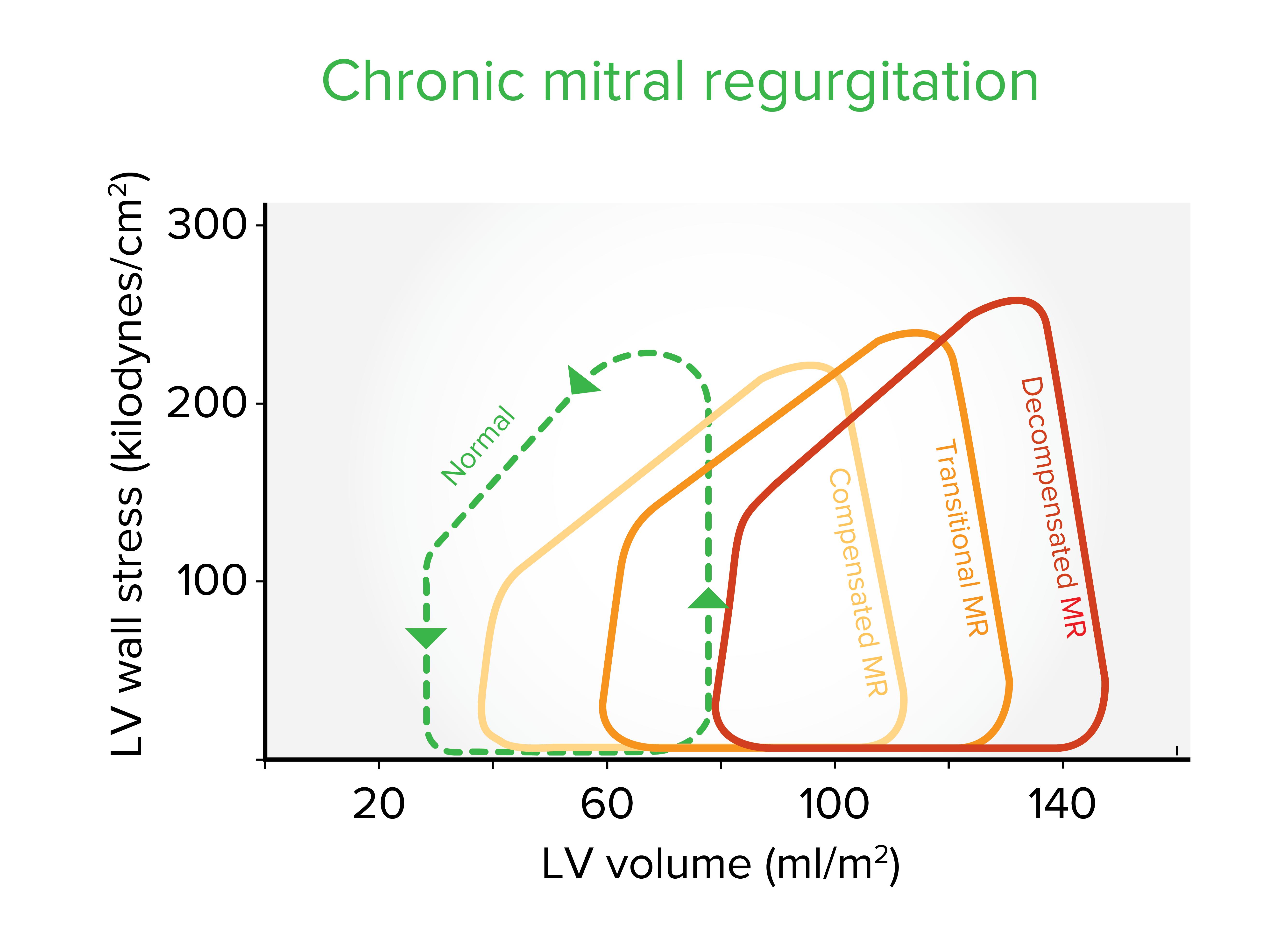 Chronic mitral regurgitation