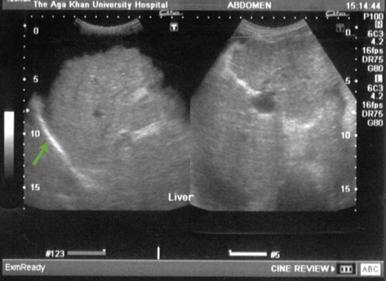 Cirrhosis ultrasound