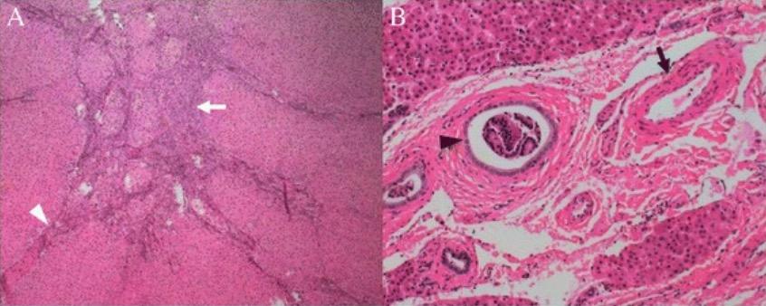 Classic focal nodular hyperplasia