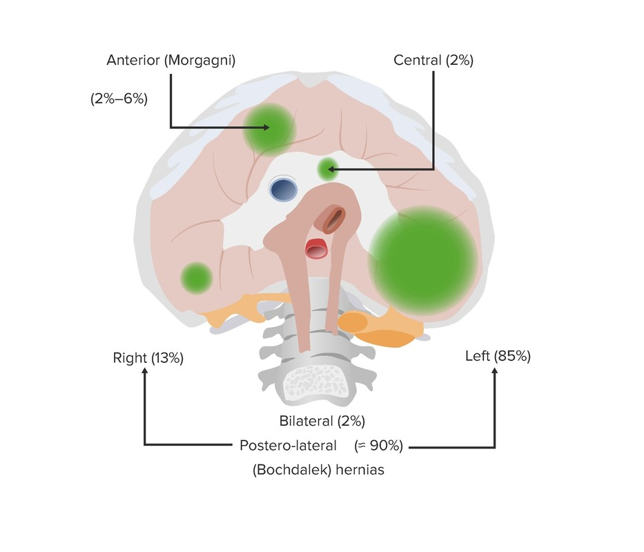 Classification of CDH based on location of the diaphragmatic hernias-scr