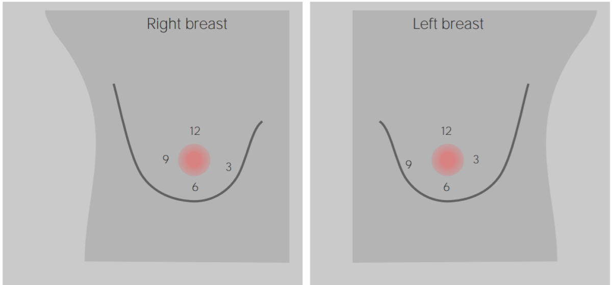 Clinical breast examination