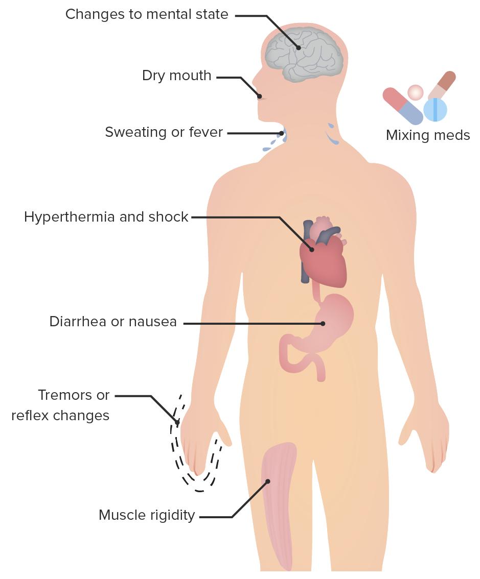 Clinical characteristics of serotonin syndrome