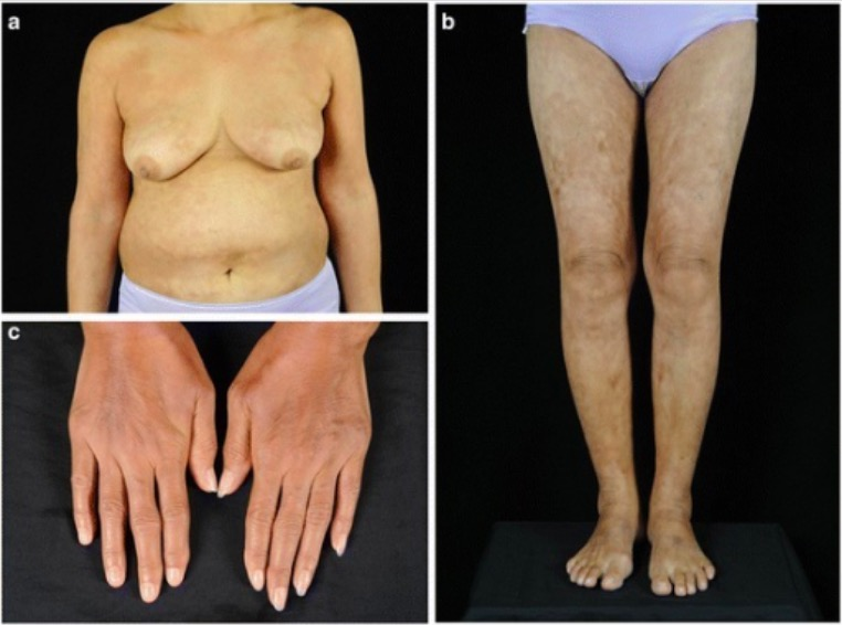 Clinical presentation of scleroderma