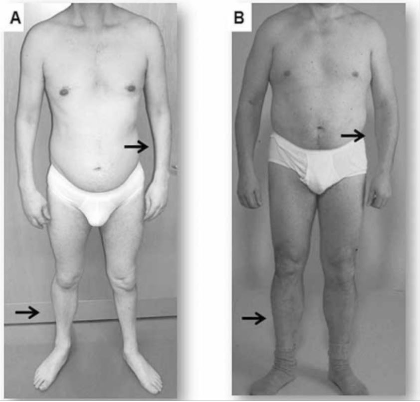 Clinical presentation of two adults with myotonic dystrophy