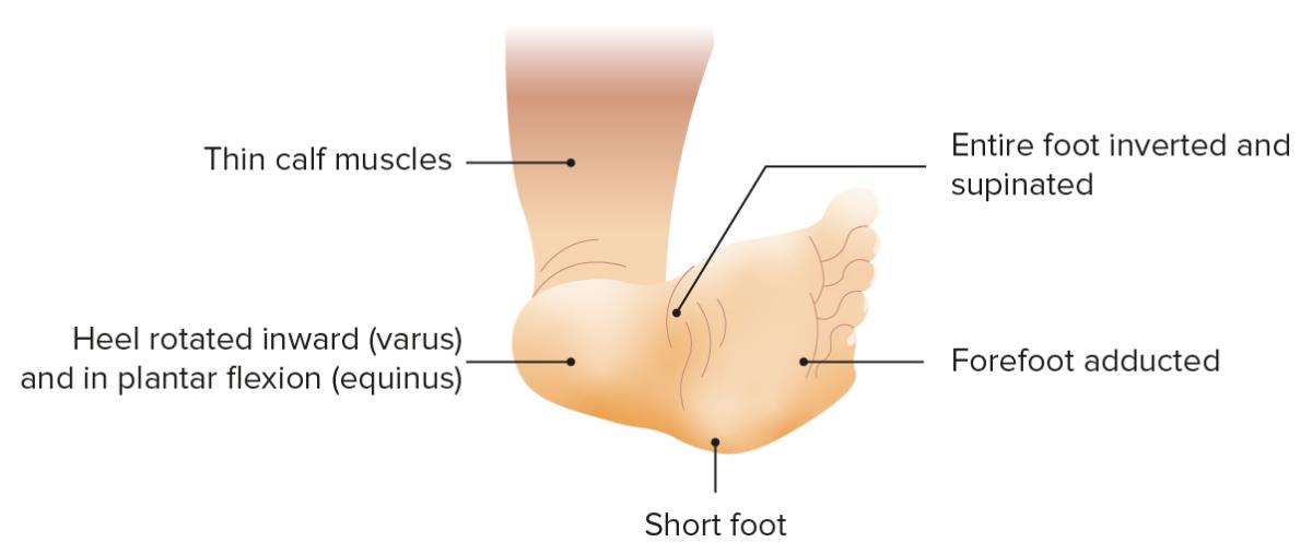 Clubfoot clinical presentation
