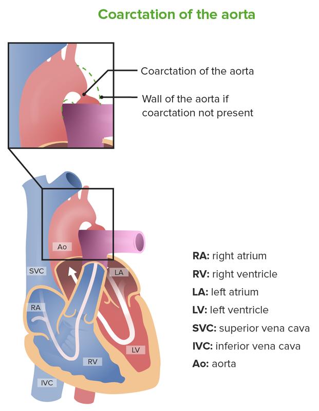 Coarctation of the Aorta-scr