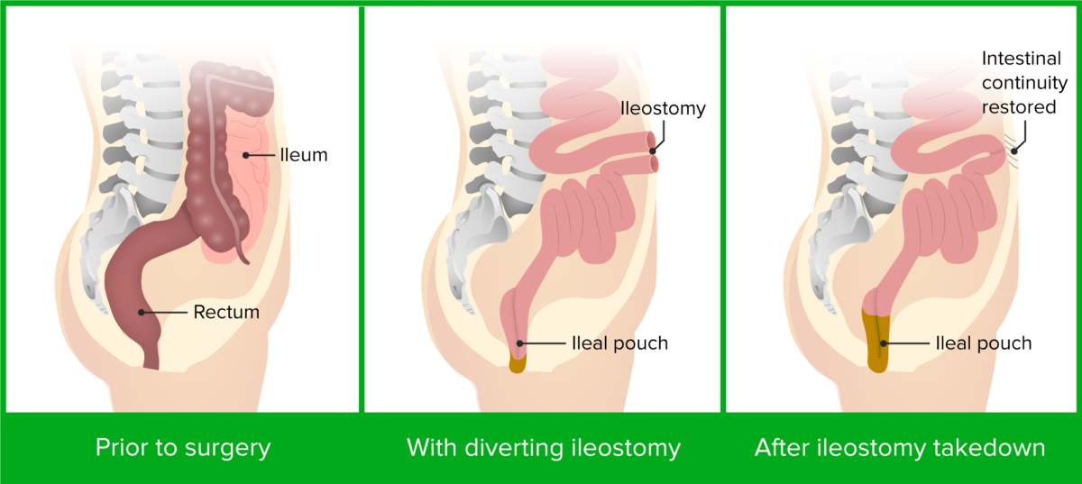 Colectomy and ileal pouch-anal anastomosis