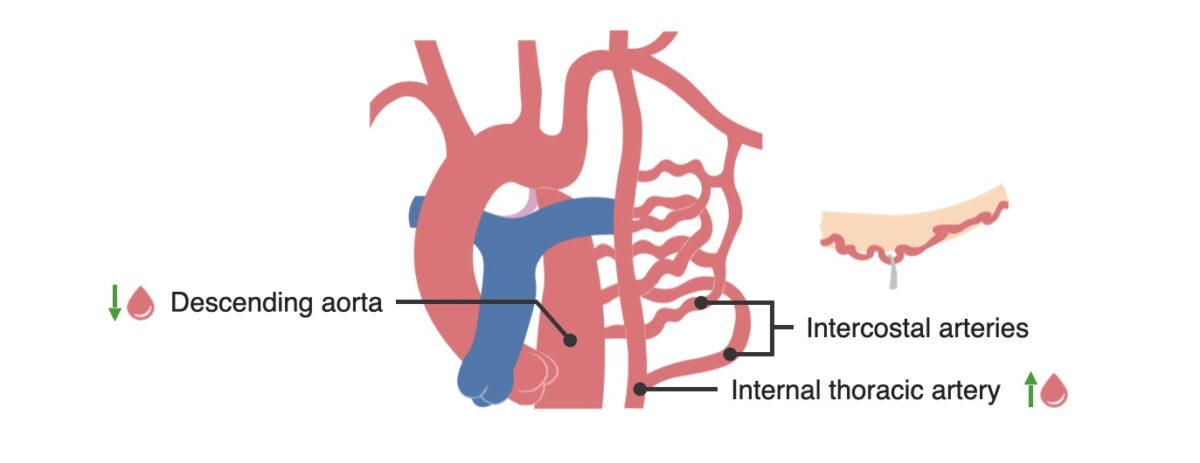 Collateral circulation in coarctation of the aorta
