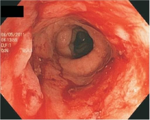 Colonoscopy ulcerative colitis