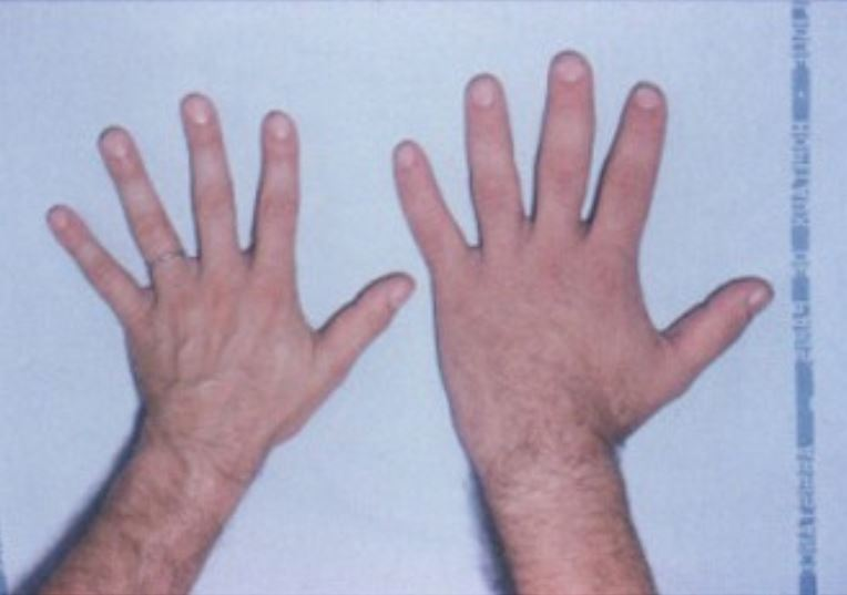 Comparison of hands acromegaly