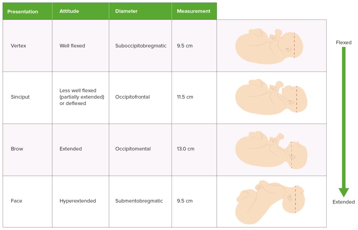 Comparison of presentation, attitude, and presenting diameter