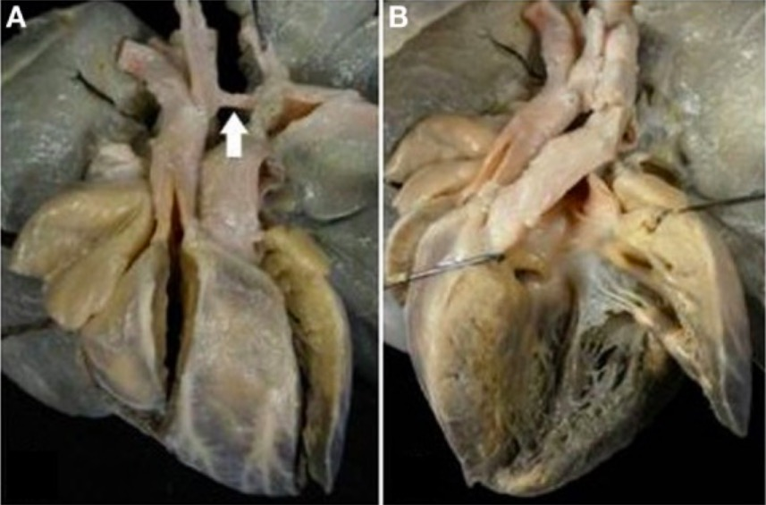 Complete TGA with VSD and aortic arch obstruction