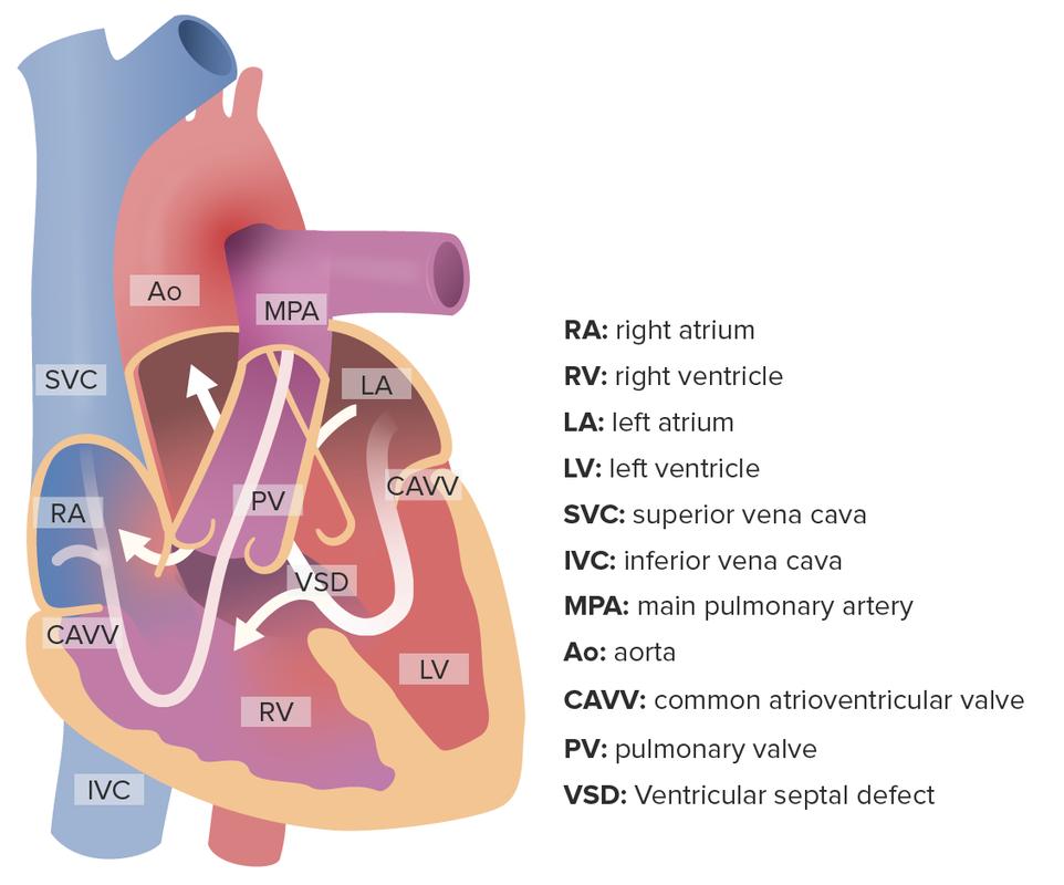 Complete atrioventricular septal defect