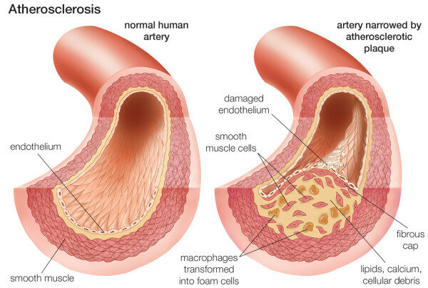 Composition of the atherosclerotic plaque